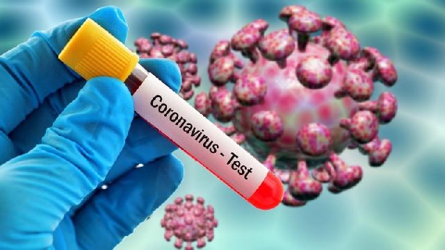 Photo of Coronavirus: Ghana records 42 deaths; caseload now 9,168
